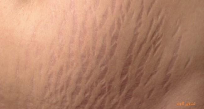 تشققات الجلد وعلاجها بالطب البديل