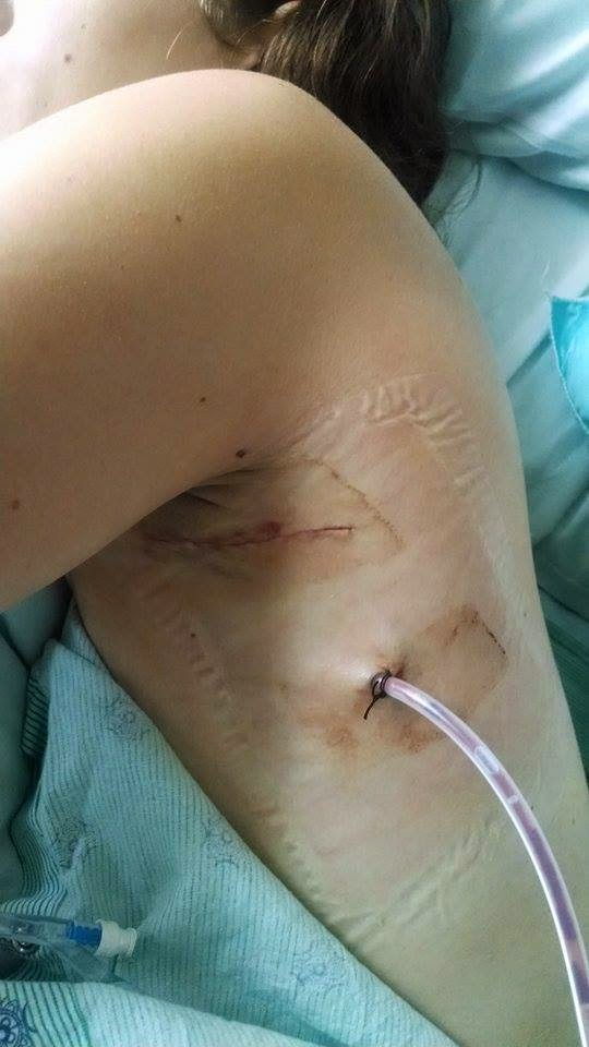 Life As A Chronic Darling Thoracic Outlet Syndrome July 2014