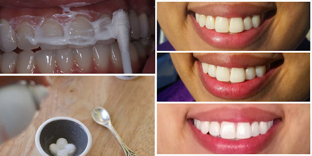 Use Aspirin And 2 Ingredients Mixture On Teeth And Make Them Whiten in 5 Minutes