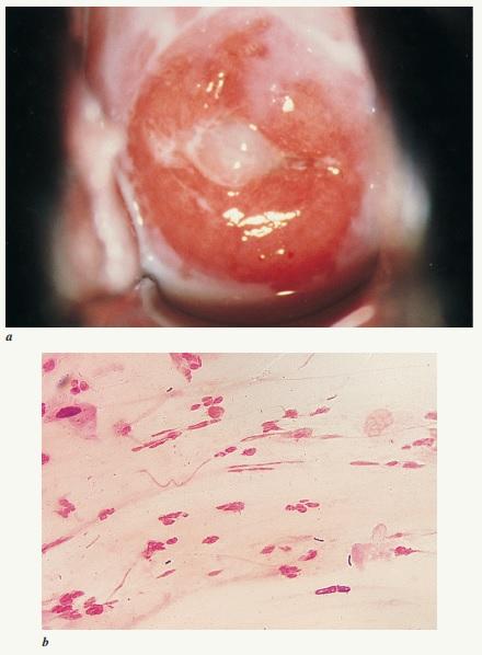 Mucopurulent cervicitis