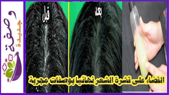 ازالة قشرة الشعر للرضع،التخلص من قشرة الشعر مثل الرمل،القضاء على قشرة الشعر الدهني، قشرة الشعر بالانجليزي،قشرة الشعر الدهنية، قشرة الشعر عند الأطفال