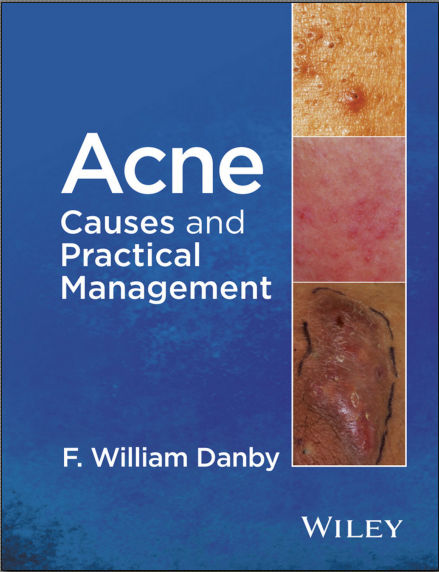 Acne Causes and Practical Management [PDF]- F. William Danby