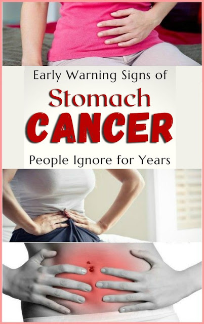 Here Are The Signs of Stomach Cancer Your Should Pay Attention To!
