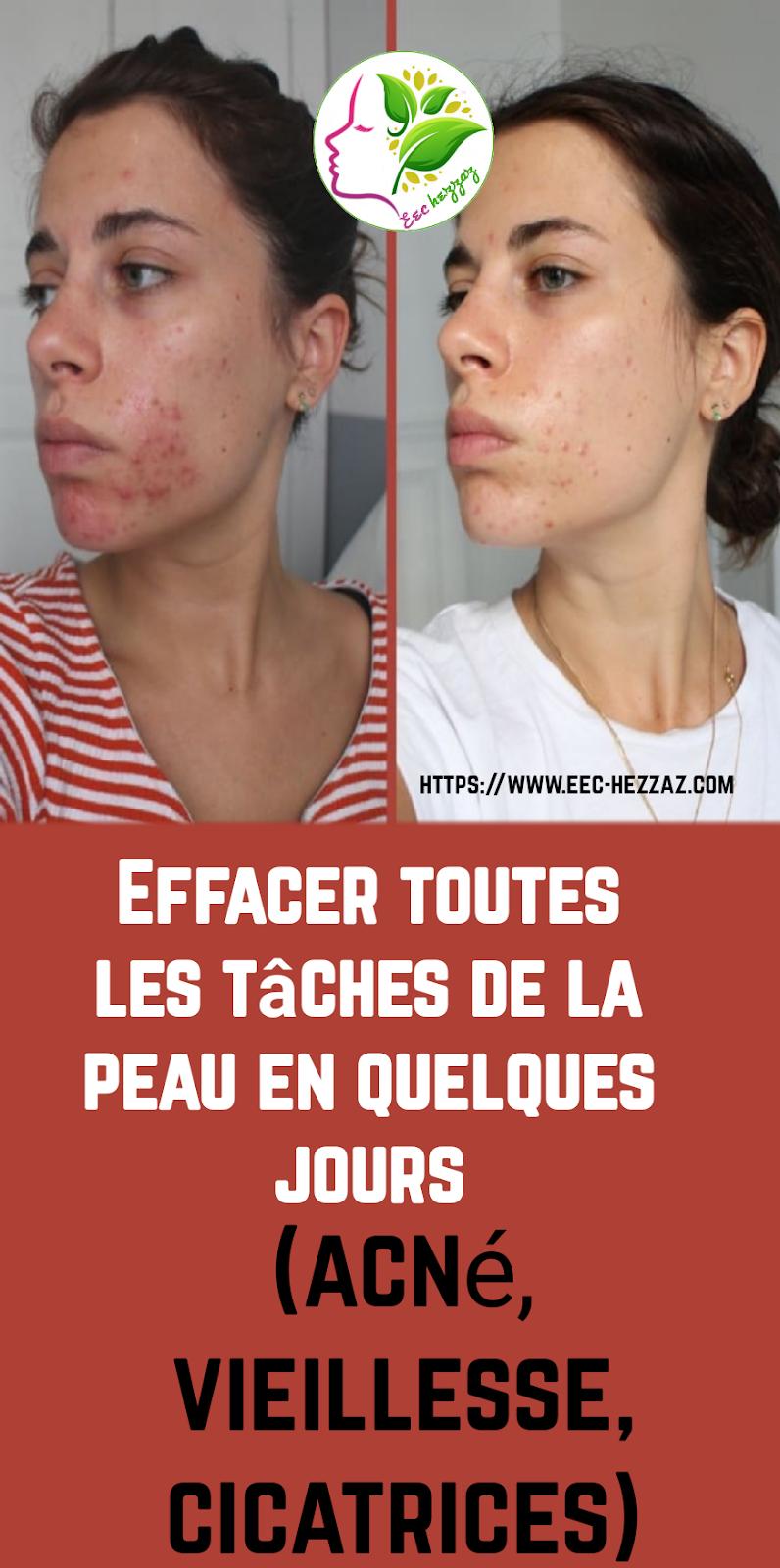 Effacer toutes les tâches de la peau en quelques jours (acné, vieillesse, cicatrices)