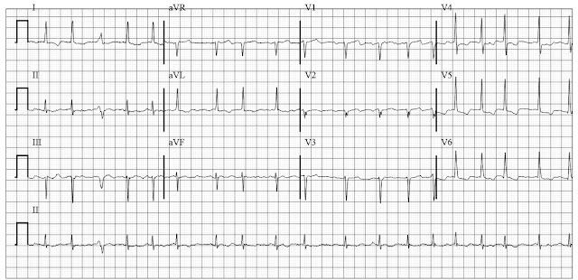 EKG of Atrial Fibrillation