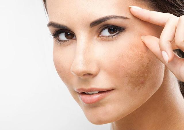 Tips Cara Alami Menghilangkan Flek Hitam di Wajah Tips Cara Alami Menghilangkan Flek Hitam di Wajah