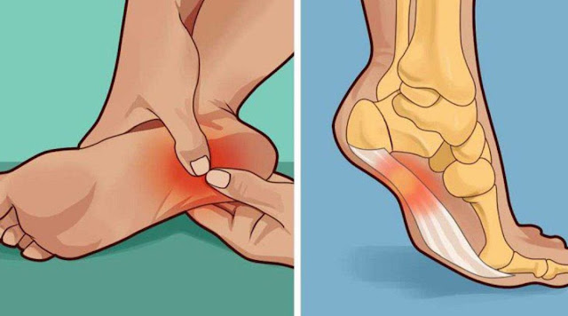 Relieve Heel Pain So You Do Not Hurt