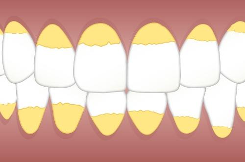 10 Cara Menghilangkan Karang Gigi Secara Alami Dengan Cepat Tanpa Efek Samping