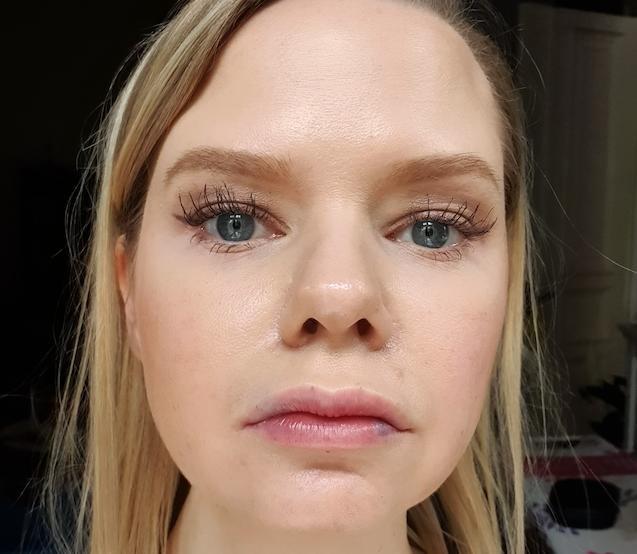 Aufspritzen wie geschwollen lippen lange Schwellung nach