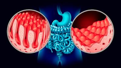 Partes intestino delgado