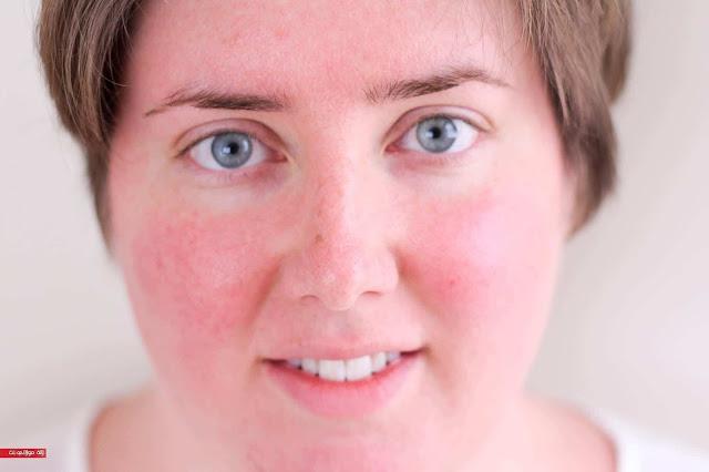 أحمرار الوجه من الحر فى الصيف بيضايقك ؟ إليكِ الحل