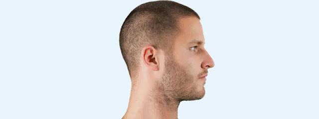 زراعة لشعر صباغة الشعر