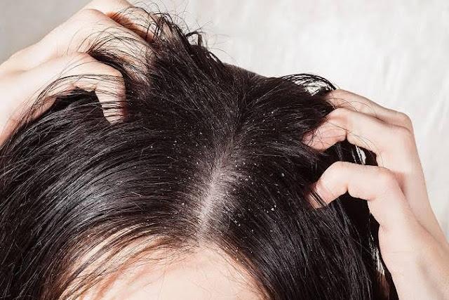Cara Mengatasi Rambut Rontok dan Ketombe dengan Mudah
