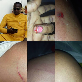 Nollywood actress Cossy Orjiakor brutally beaten by a wife beater