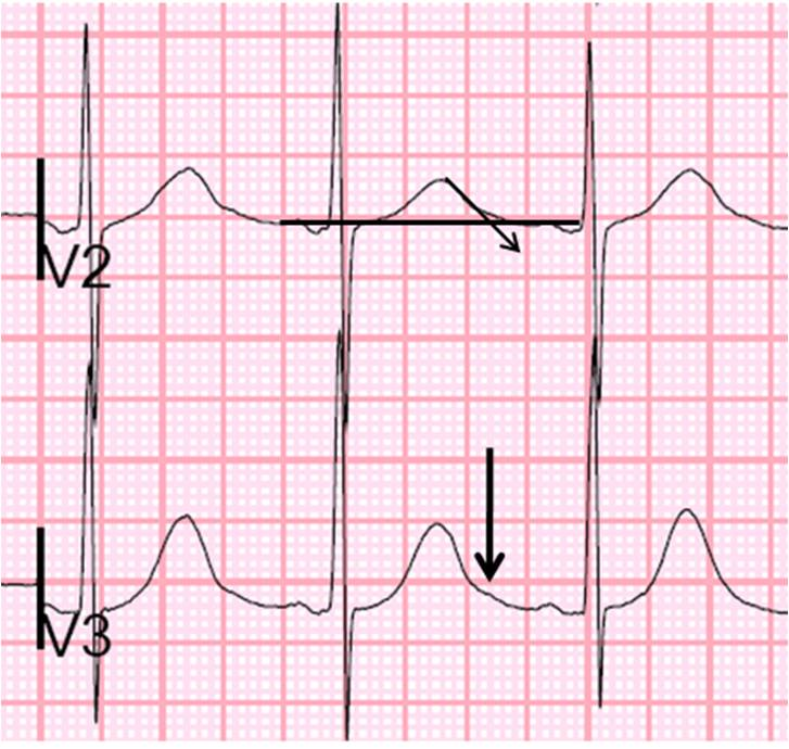 Dr. Smith's ECG Blog: Altered Mental Status, possible ...