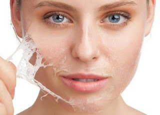 Supprimer les points noirs du visage avec 2 remèdes anciens