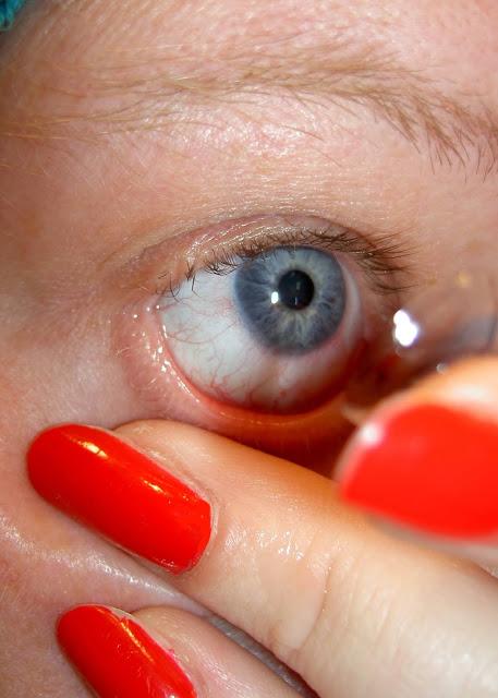 Les médecins ont trouvé 27 lentilles de contact dans l'œil d'un patient