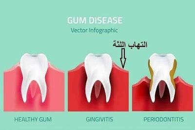 أعراض وأسباب الم الاسنان