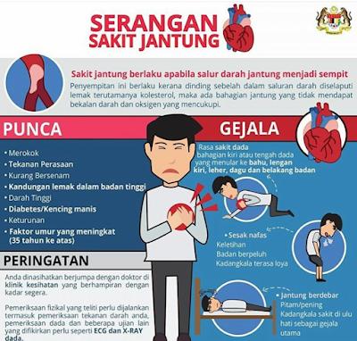 Serangan Jantung Tanda Awal Dan Cara Merawatnya