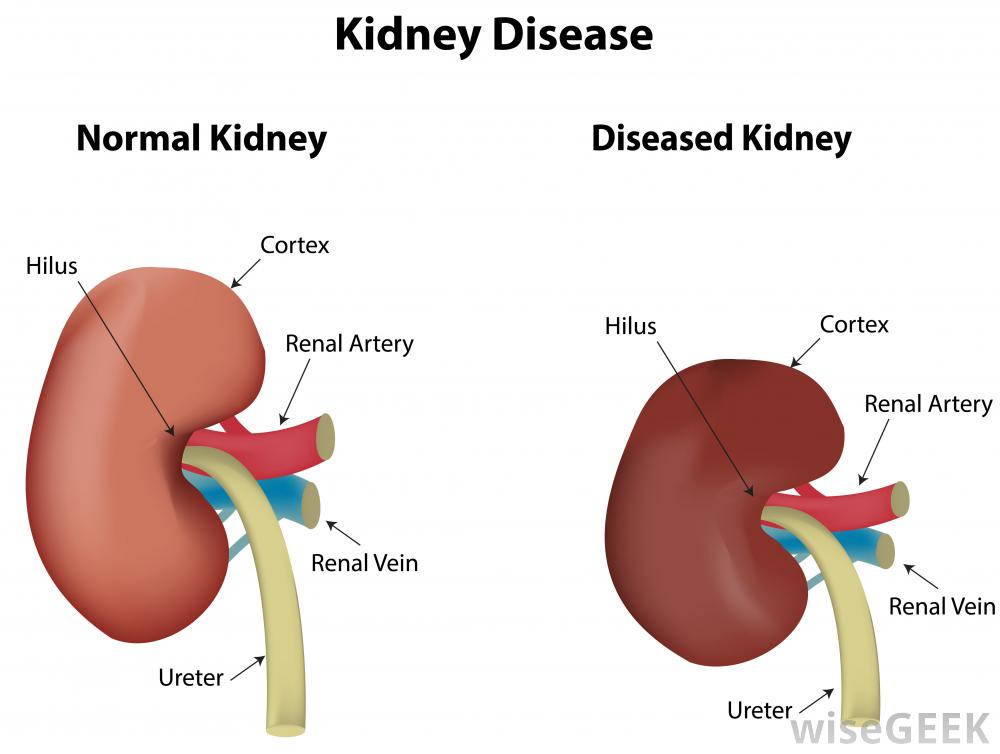 hypertension and renal failure relationship