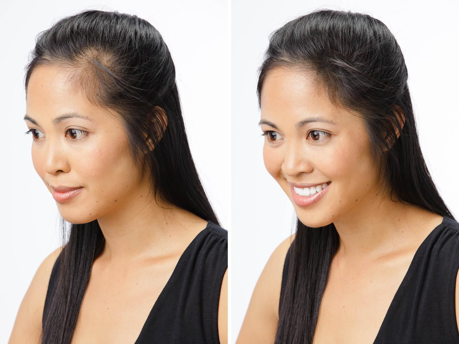 జుట్టు రాలడాన్నినివారించే సులభమైన విధానం - How to Stop hair loss