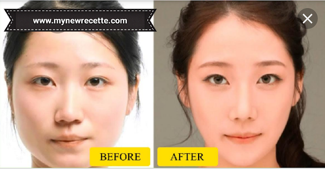 تنحيف الوجه، التخلص من الذقن المزدوج