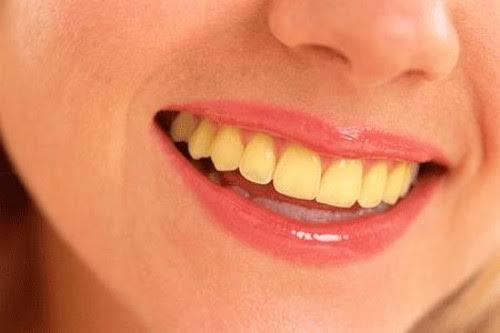 पीले दांतो को साफ करने का सबसे सरल और आसान नुस्खा जानिये आप भी !