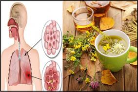 علاج التهاب القصبات الهوائية بالاعشاب