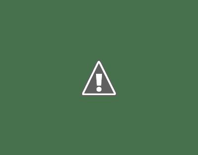 gallstones in a patient