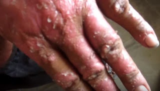 Gül yarası hastalığı