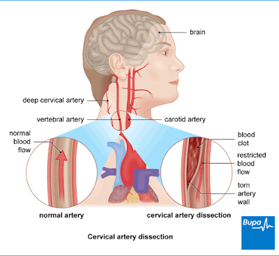 Cervical Artery Dissection Bupa UK