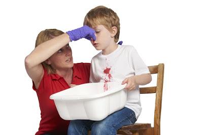 Anda Jangan Gelisah Ketika Melihat Mimisan Pada Anak