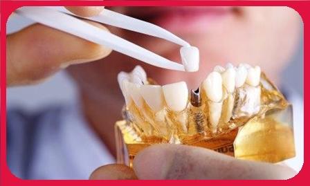 implan gigi jakarta harga, implan gigi murah jakarta, biaya implan gigi jakarta, implan gigi terbaik jakarta