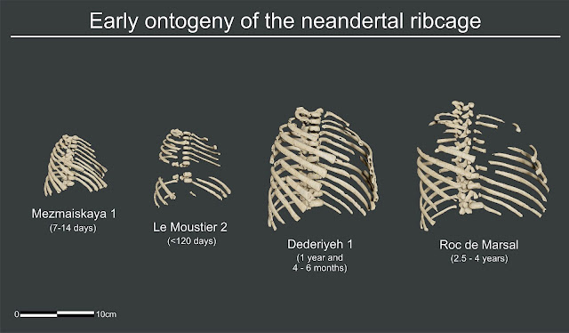 Newborn Neanderthals had a robust and broad thoracic cage just like the adult one