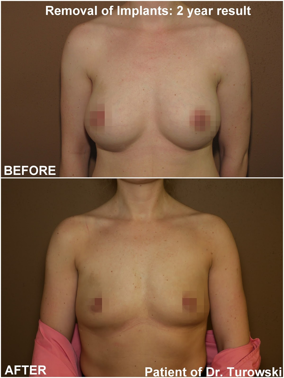 revision breast surgery jpg 1500x1000