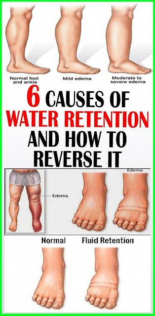 6 Causes of Water Retention and How to Reverse It