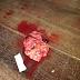 Parte da placenta ainda estava dentro de mulher que teve bebê em hospital de Sena