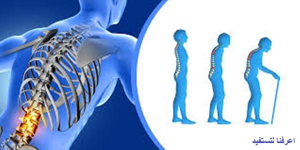 تشخيص الإصابة بمرض هشاشة العظام