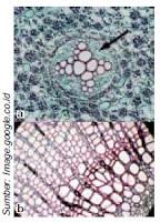 Struktur Jaringan Epidermis, Parenkim, Kolenkim, Sklerenkim, Pembuluh, Gabus dan Jaringan Embrional Pada Tumbuhan