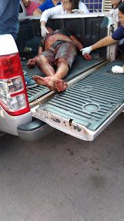 Rapaz é morto a tiros, polícia prende suspeito em menos de 24 horas, na Paraíba