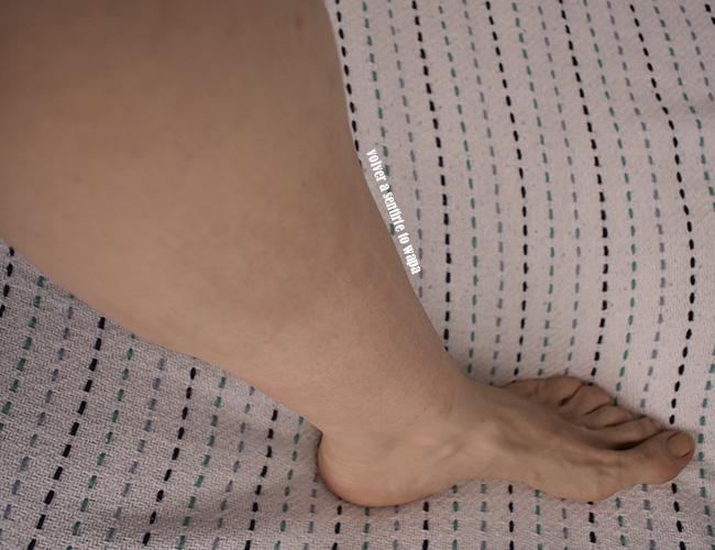 Eccema en la piel por la depilación