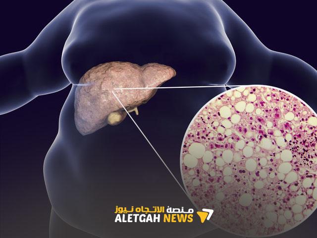 ما هو علاج الكبد الدهني؟ 10 طرق بسيطة وسريعة للتخلص من دهون الكبد