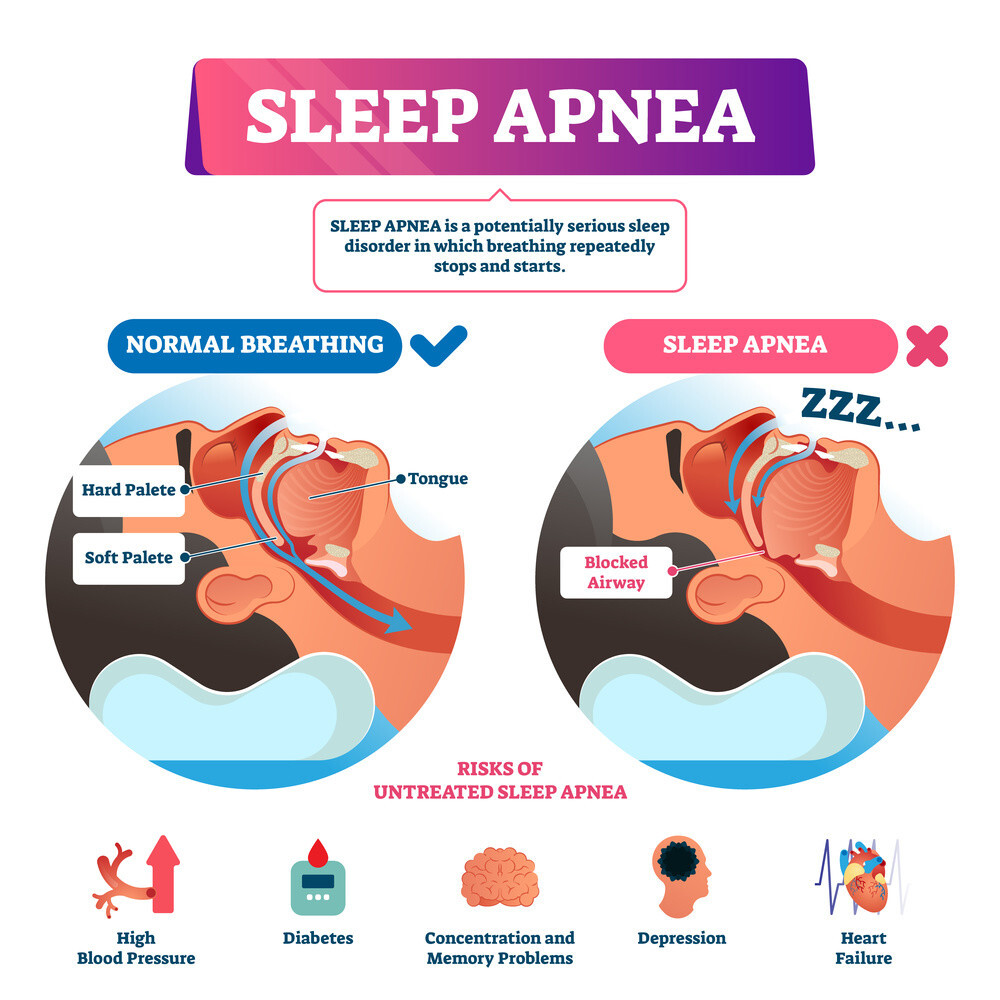 A Guide To Living With Sleep Apnoea