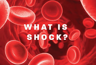 In shock, the mean arterial pressure is less than 60 mmHg or the systolic blood pressure is less than 90 mmHg.