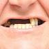 Hãy làm răng Implant để thưởng thức những món ăn ngon trọn vẹn