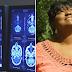 Mulher testemunha que 'tumor cerebral dissolveu' após orações