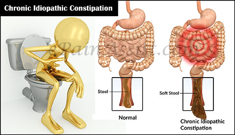 how to get rid of chronic constipation naturally