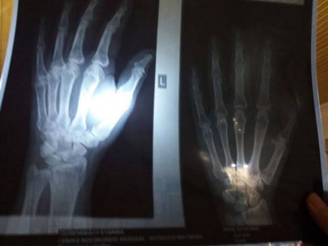 Εύβοια: Αυτή είναι η ακτινογραφία που έδειξε αυτό που φοβόταν – Η αναπάντεχη περιπέτεια της γυναίκας