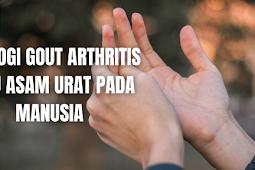 Etiologi Gout Arthritis atau Asam Urat Pada Manusia