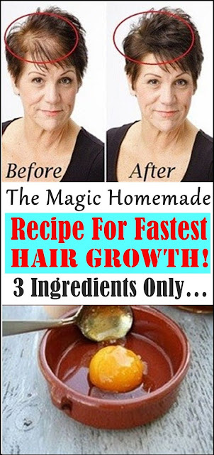 The Magic Homemade Recipe For Fastest Hair Growth! 3 Ingredients Only